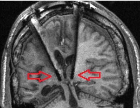 Deep Brain Stimulation electrodes in the thalamus